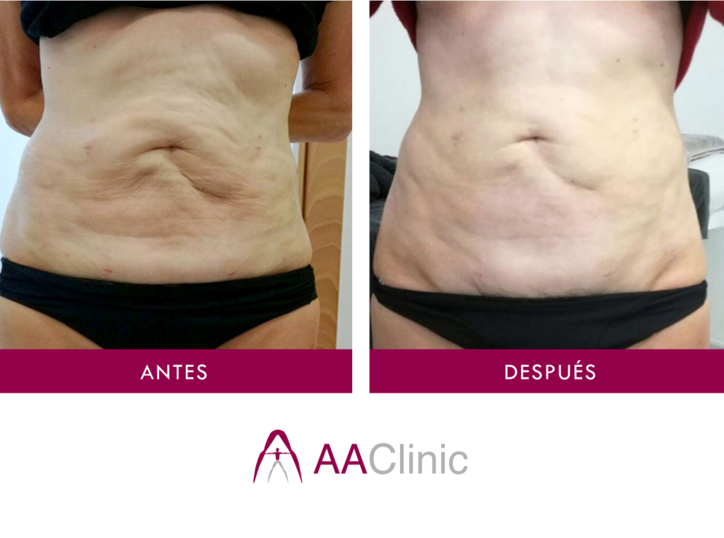 ANTES-DESPUES-ESTETICA