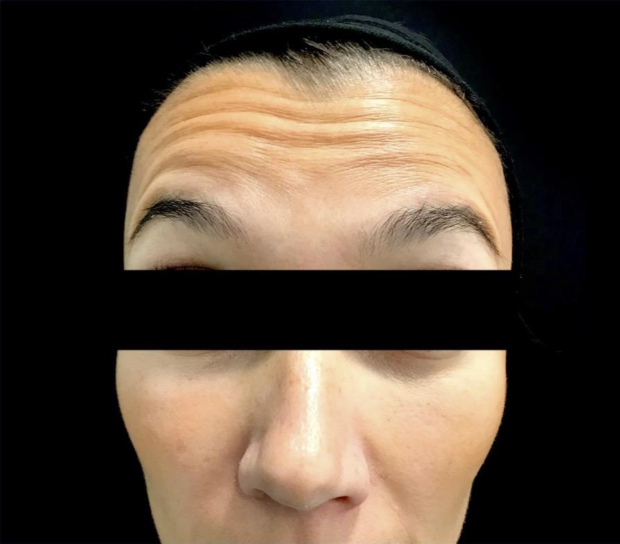 aaclinic-antes-y-despues-arrugas-botox-1