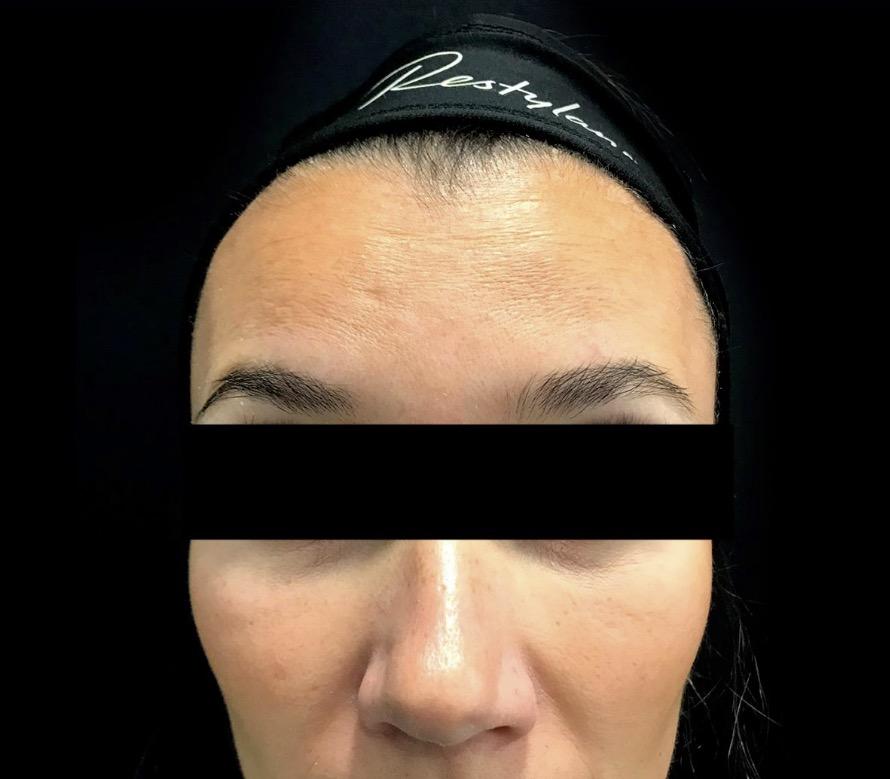 aaclinic-antes-y-despues-arrugas-botox-2