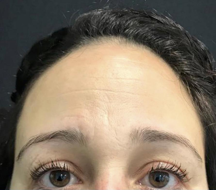aaclinic-antes-y-despues-arrugas-botox-3