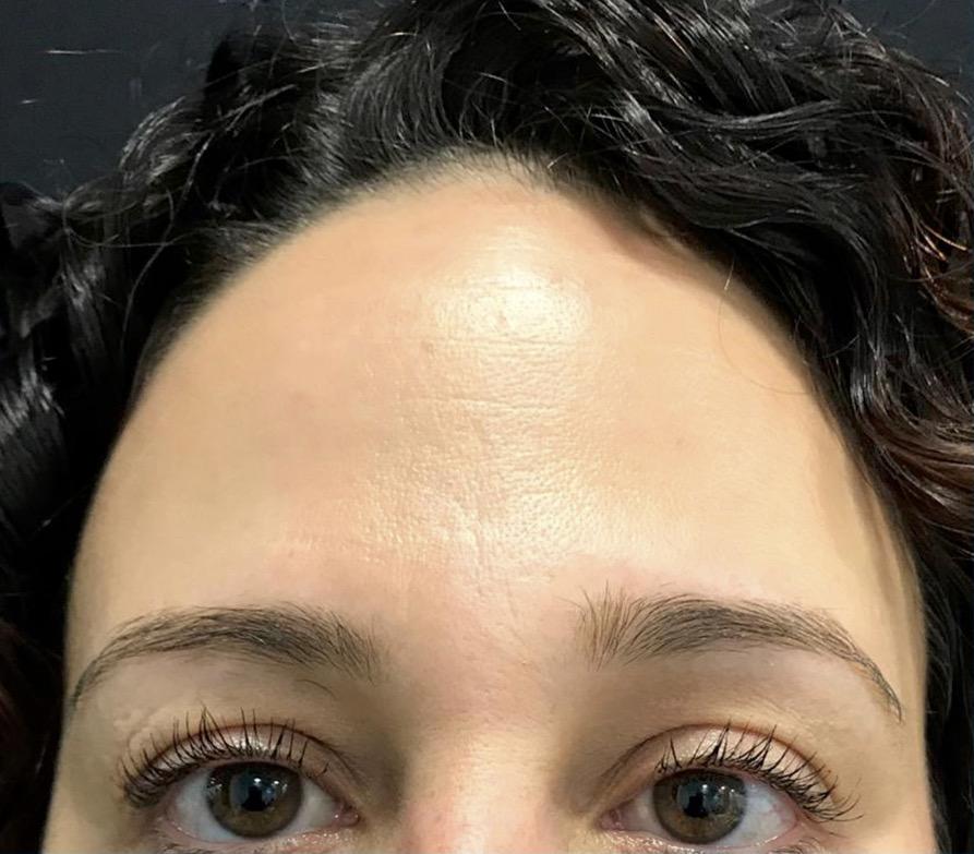 aaclinic-antes-y-despues-arrugas-botox-4