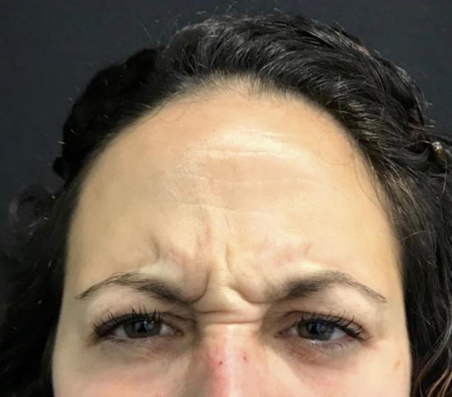 aaclinic-antes-y-despues-arrugas-botox-5