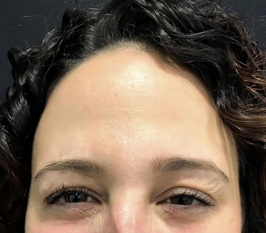 aaclinic-antes-y-despues-arrugas-botox-6