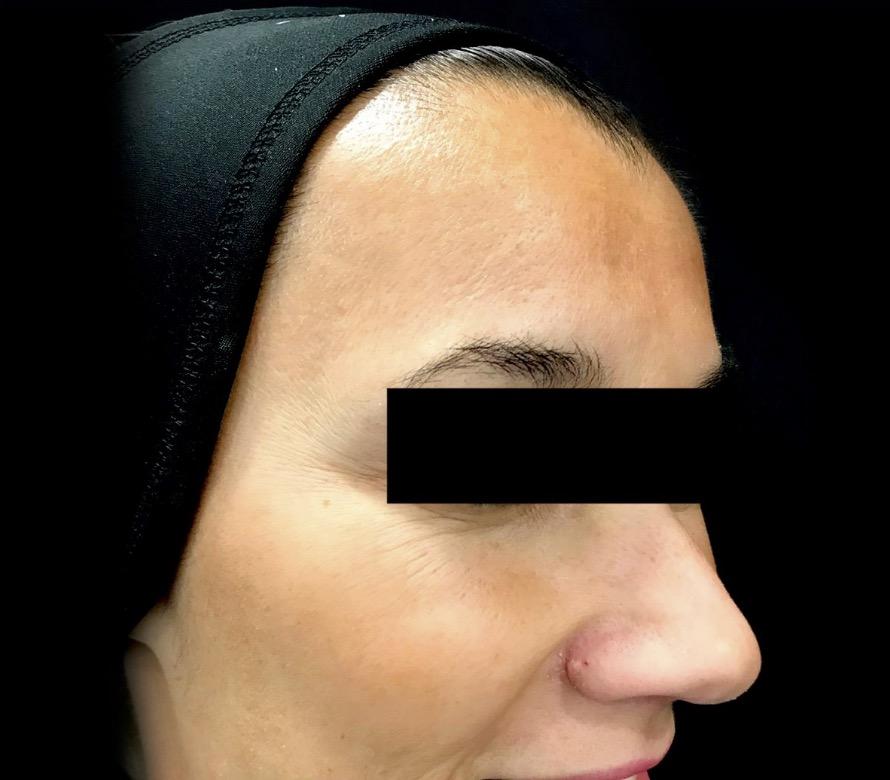 aaclinic-antes-y-despues-arrugas-botox-7