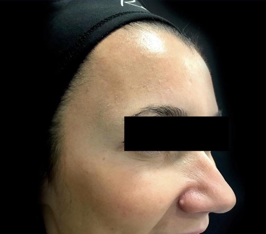 aaclinic-antes-y-despues-arrugas-botox-8