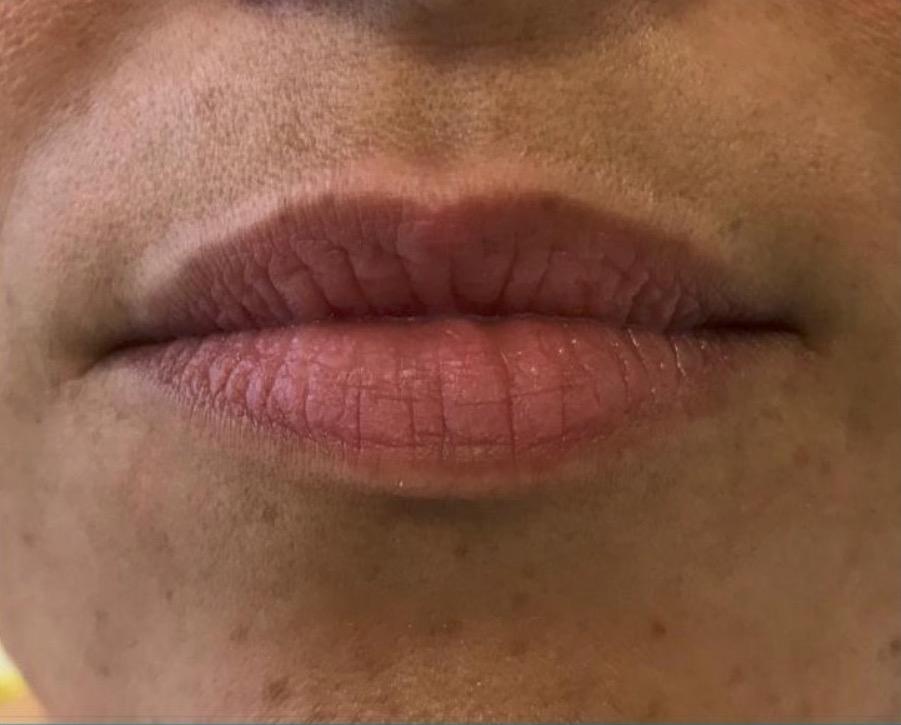 aaclinic-antes-y-despues-labios-1