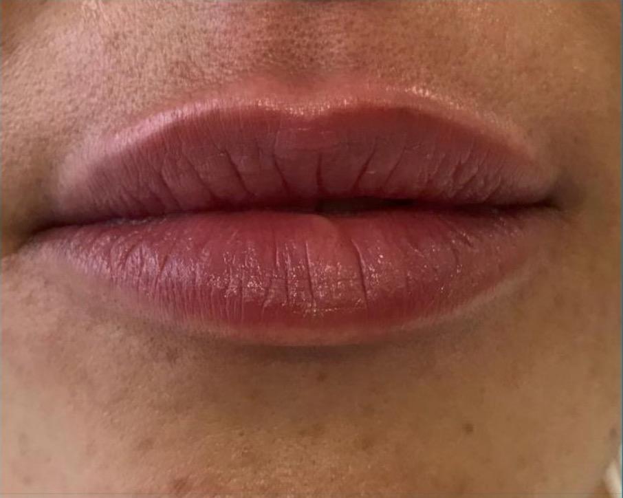 aaclinic-antes-y-despues-labios-2