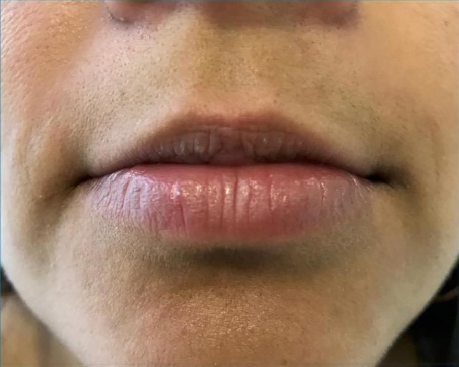 aaclinic-antes-y-despues-labios-3