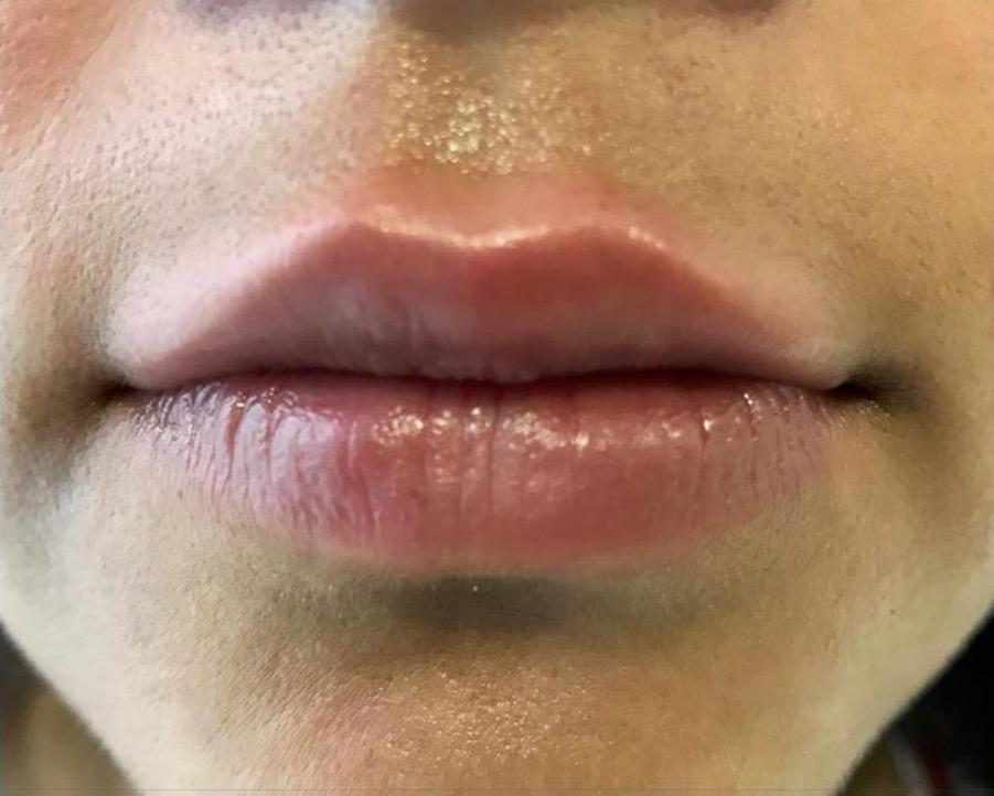 aaclinic-antes-y-despues-labios-4