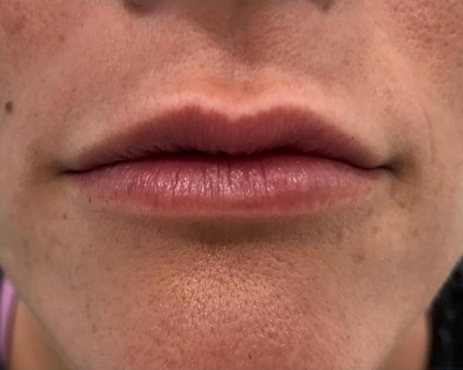 aaclinic-antes-y-despues-labios-5