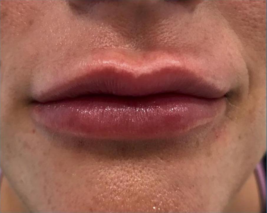 aaclinic-antes-y-despues-labios-6