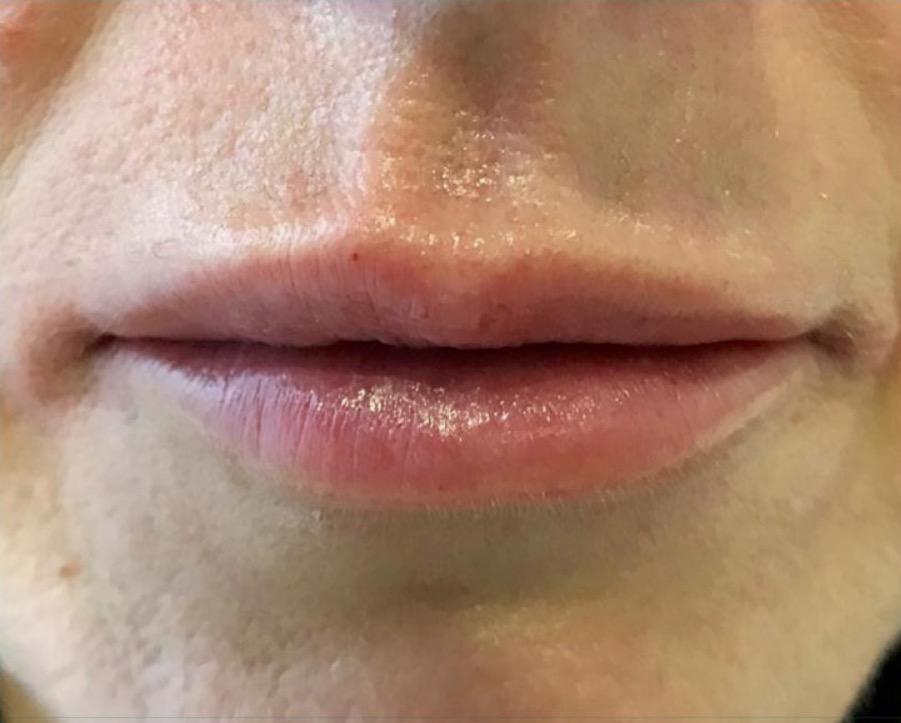aaclinic-antes-y-despues-labios-7