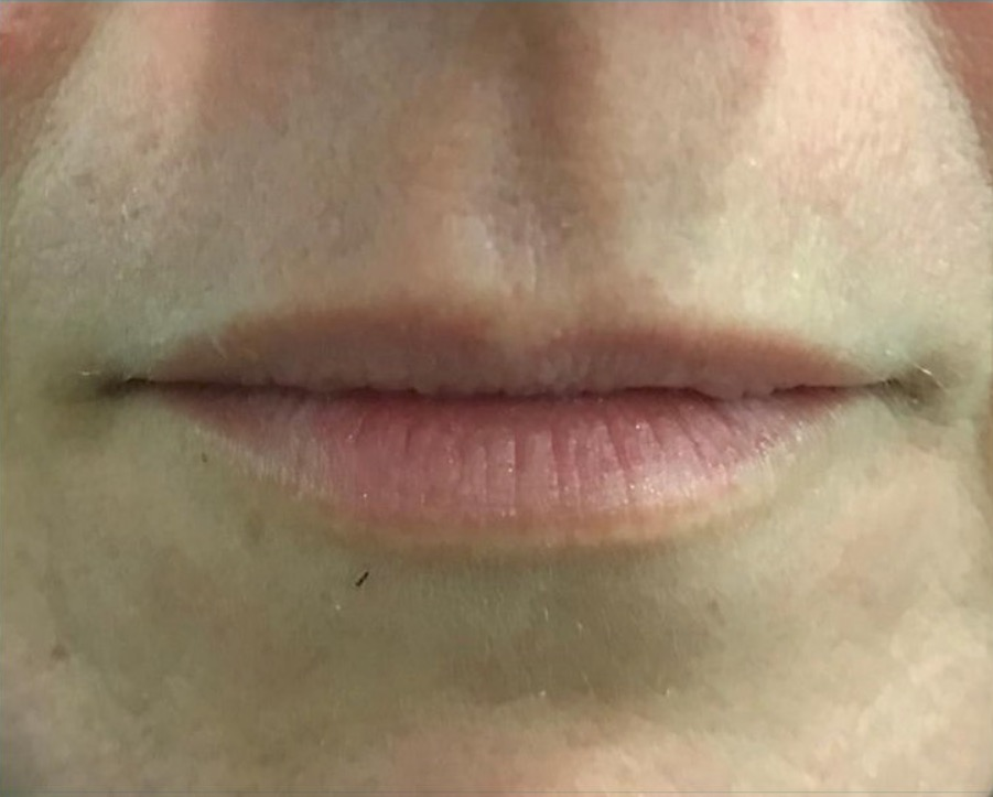 aaclinic-antes-y-despues-labios-8